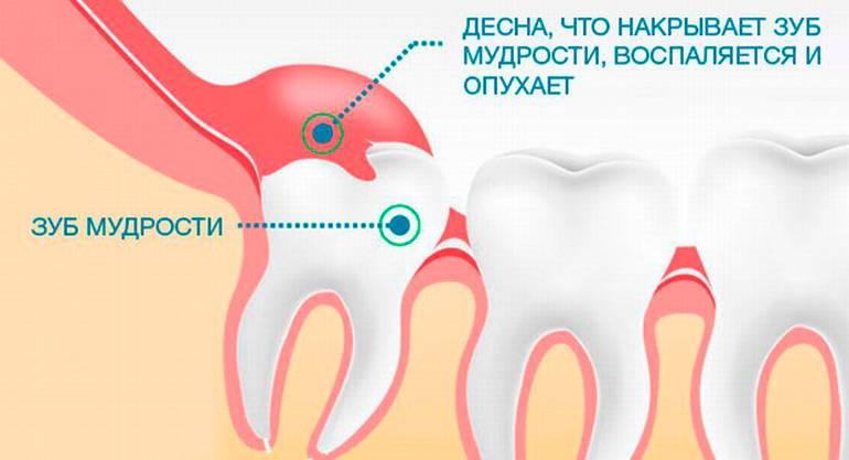 Как узнать как растет зуб мудрости
