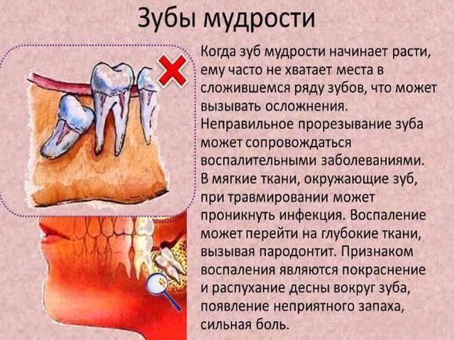 воспаление зуба мудрости