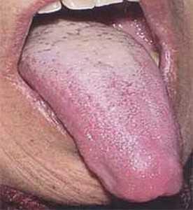 Сухость во рту и белый язык