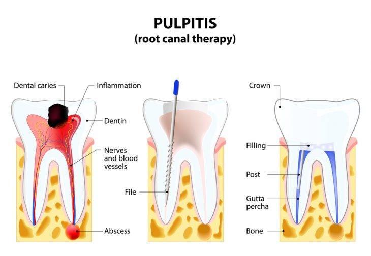 Почему появляется пульсирующая боль в зубе