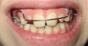 Исправление кривых зубов и прикуса брекетами