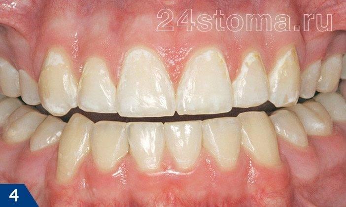 Кариес в стадии белого пятна на шейках верхних зубов