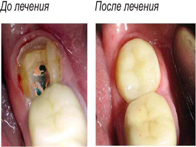 кариес до лечения и после