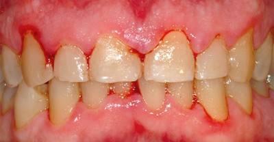 Неправильная гигиена полости рта приводит к гингивитам