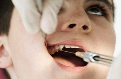 Операция на зубах