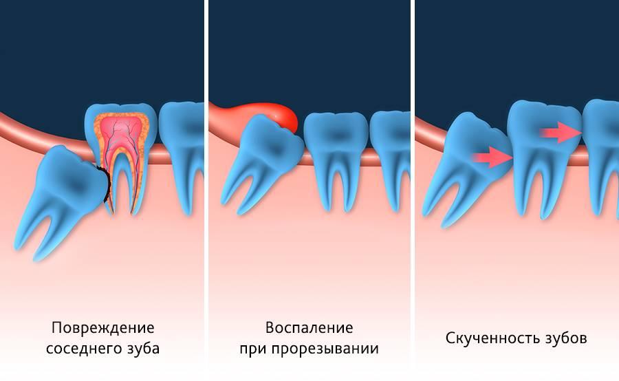 Зуб мудрости: удалять или лечить?