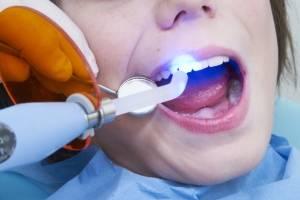 Болит и сводит зуб после лечения кариеса