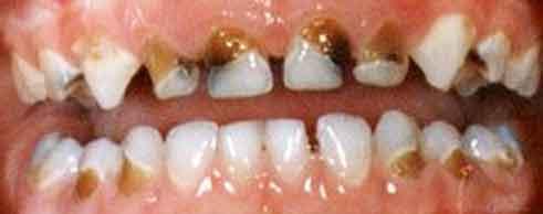 бутылочный кариес Черные зубы у ребенка