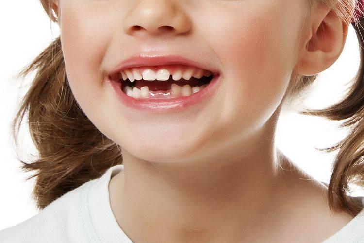 Девочка показывает белые зубки