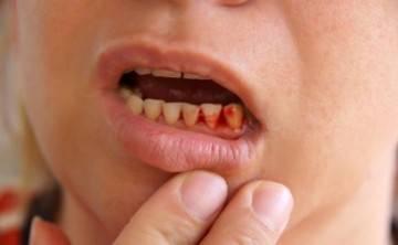 Десна покраснела и болит — Зубы