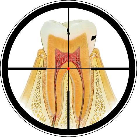 Несмотря на большое количество стоматологических клиник сегодня многие люди все еще пытаются избавиться от кариеса дома самостоятельно. О том, возможно ли это, мы дальше и поговорим...