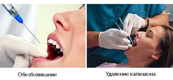 Этапы процедуры иссечения капюшона