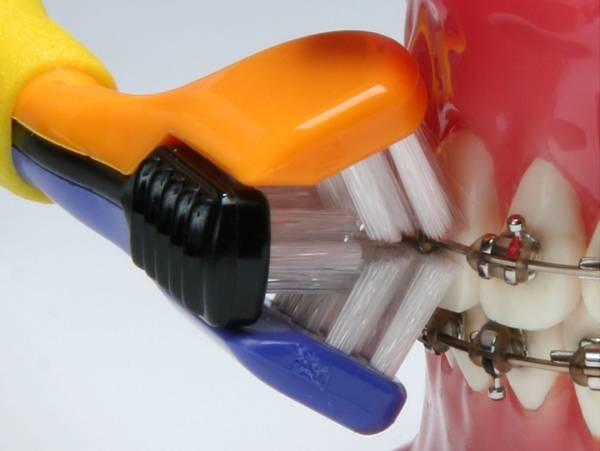 Можно ли лечить зубы в брекетах