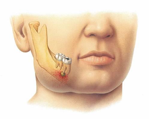 Зубной флюс