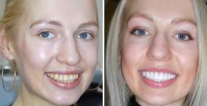 Портят ли виниры зубы