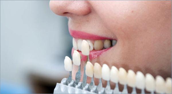 Подпиливание зубов до и после