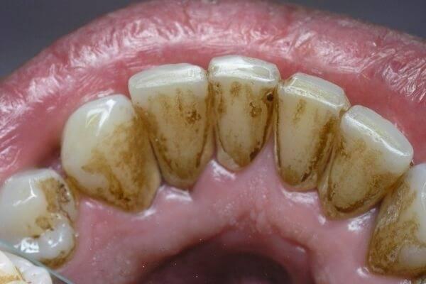 Зубной камень причины возникновения Физиологические особенности нездоровое питание и другие факторы