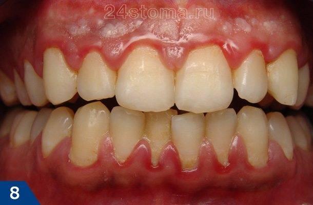 Скопления мягкого зубного налета в области шеек зубов
