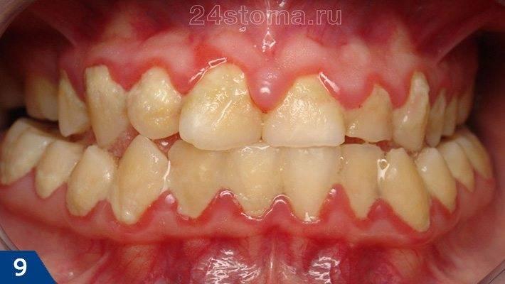 Массивные скопления мягкого зубного налета в области верхних и нижних зубов
