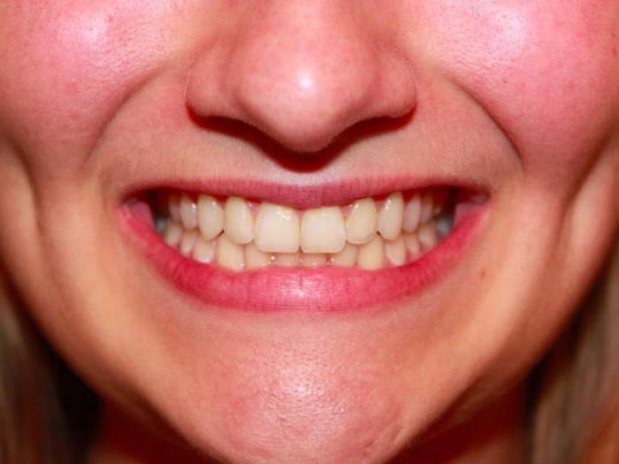 крошатся передние зубы