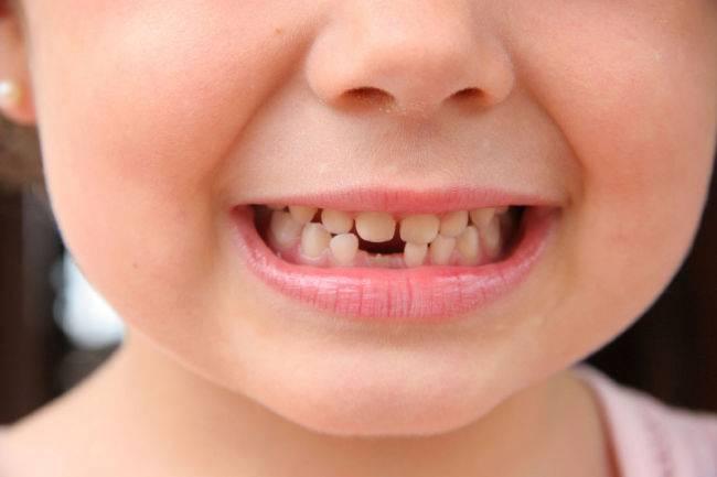 Как выглядит вырванный молочный зуб передний верхний