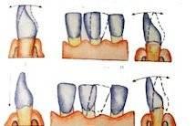 Расшатывание передних зубов