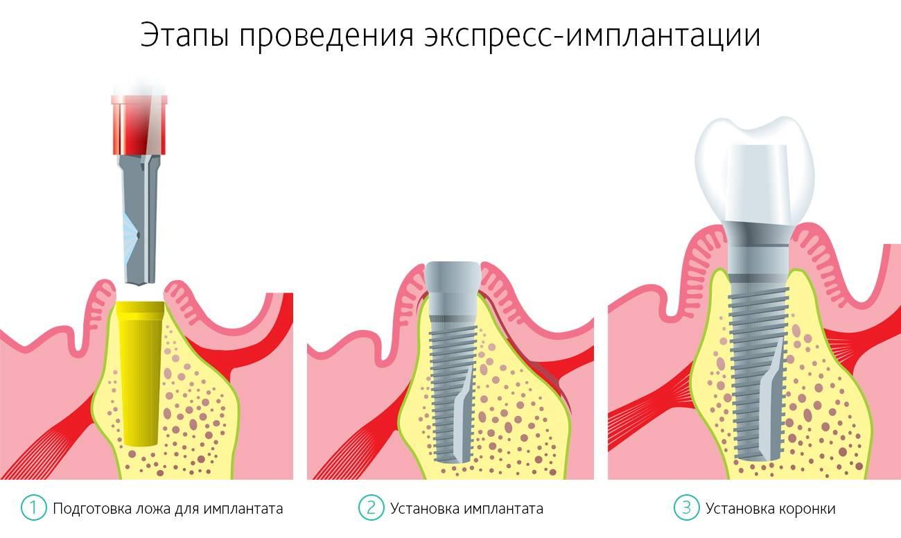 implantaicya_zybov