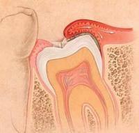 Почему не выросли зубы мудрости