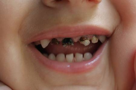 Детский кариес молочных зубов