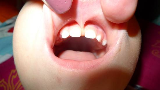 уздечка верхней губы