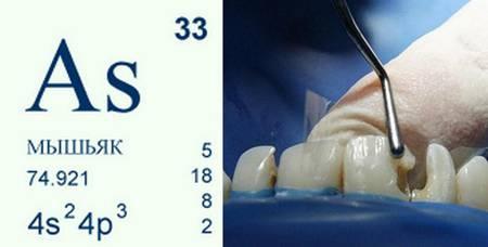 Фото: мышьяк в стоматологии