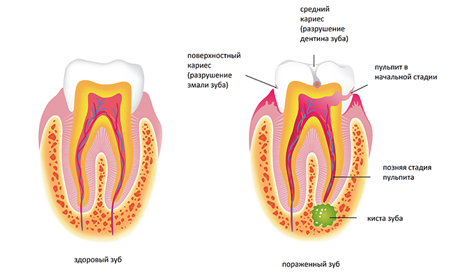 Этапы формирования кисты зуба