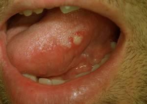 Лечение прыщей на языке