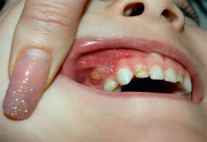 У ребенка красная десна над зубом — Зубы
