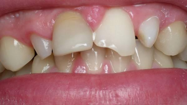 скол на зубах