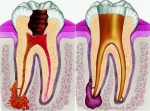 Дырка между десной и зубом