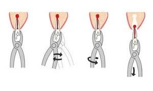 Раскачивающими движениями вытащите зуб из лунки