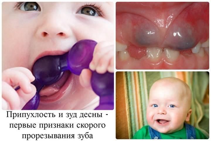 признаки режущихся зубов
