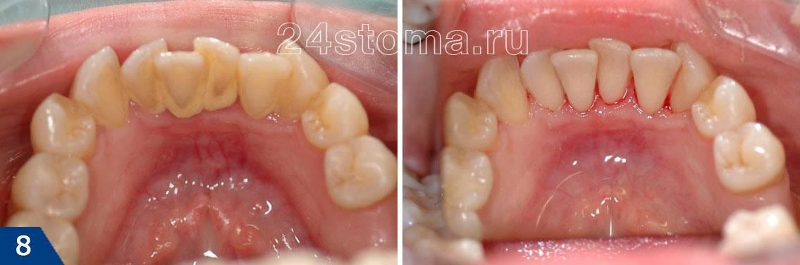 Вид зубов до и после снятия зубного камня ультразвуком