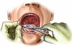 Если еда попала в лунку после удаления зуба — Болезни полости рта