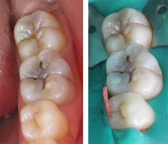 Воздействие на зуб бормашиной и, тем более, удаление из него нерва - это своего рода хирургическое вмешательство с целью удаления инфицированных тканей.