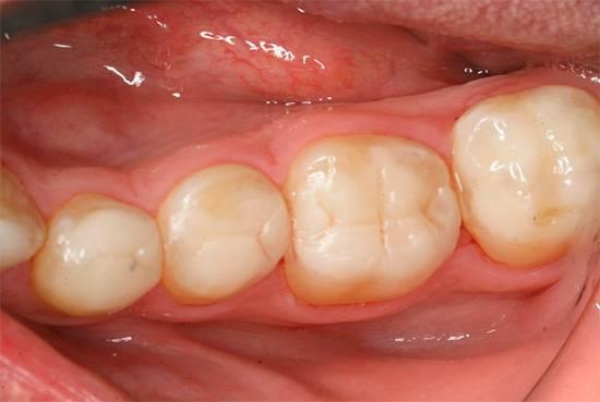Завышенная по прикусу пломба (мешающая при накусывании), может привести к травмированию окружающих корень зуба тканей.