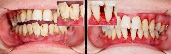На фото показан маргинальный периодонтит - до и после лечения