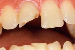 Почему откалываются зубы