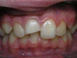 Как выглядит нерв в зубе