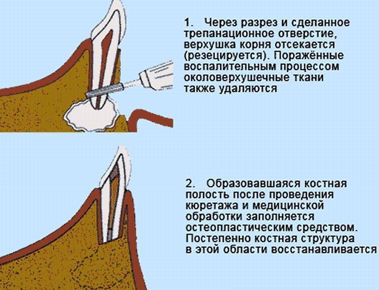 шаги аспектомии