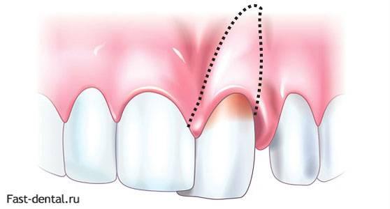 Почему у ребенка шатаются коренные зубы?