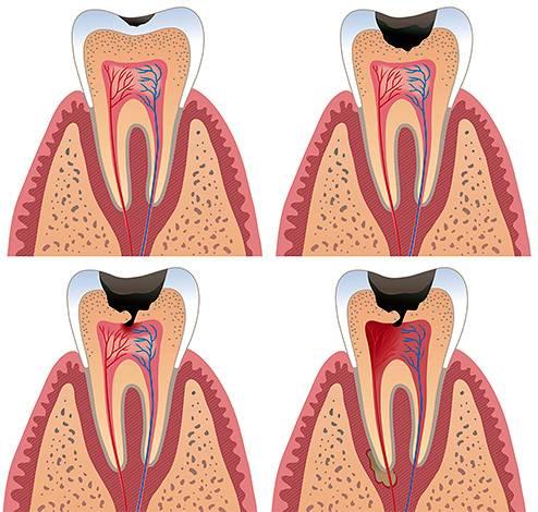 Если вовремя не начать лечение, то омертвевший зубной нерв будет разлагаться прямо в пульповой камере, а инфекция поразит окружающие зуб ткани.