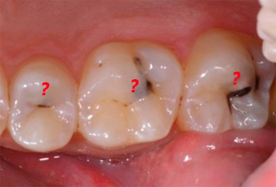 При диффузном пульпите не всегда бывает понятно, какой именно зуб провоцирует острую боль.