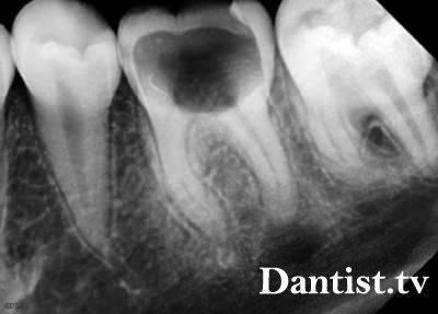 Киста зуба на рентгене